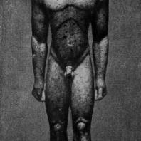 Аттический курос. Мрамор. Около 600 г. до н. э. Нью-Йорк. Метрополитен-музей