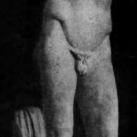 Поликлет. Диадумен. Около 420 г. до н. э. Мраморная римская копия с утраченного бронзового оригинала. Афины. Национальный музей